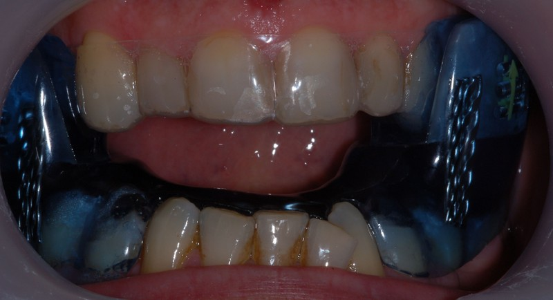 appareil dentaire anti ronflement
