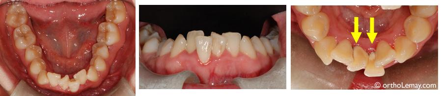 appareil pour nettoyer entre les dents