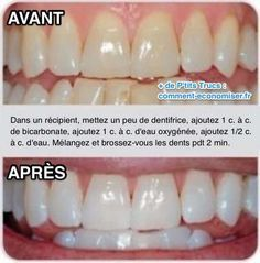 bicarbonate et dents