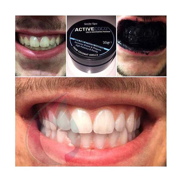 charbon dentaire