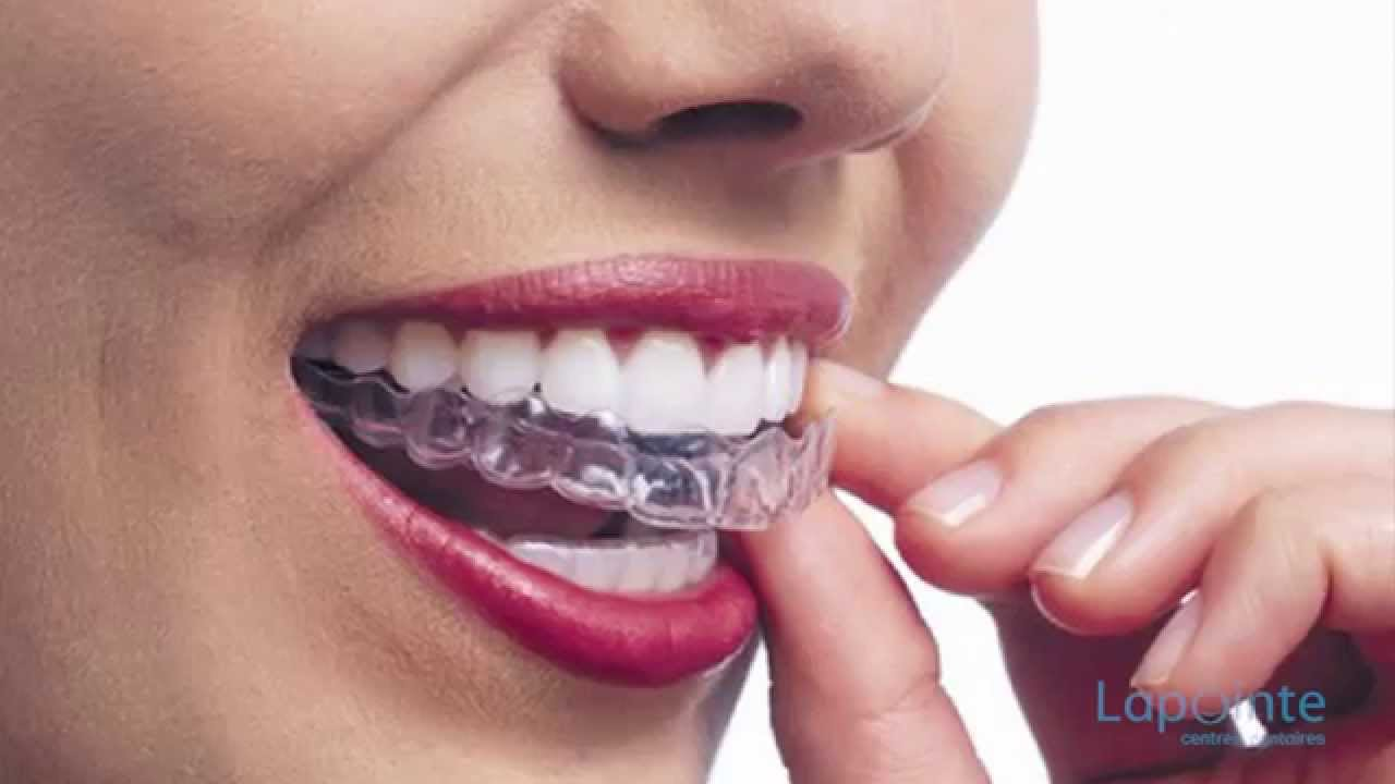 dents gouttières